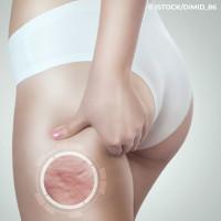 Oberschenkel mit Cellulite