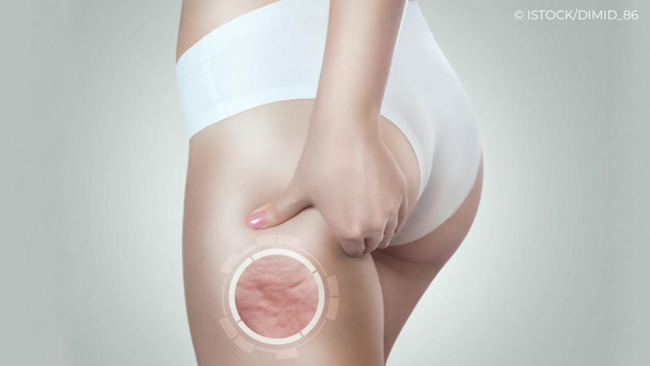 Cellulite am Oberschenkel